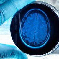 Эксперты предупреждают, что мы «очень близки» к созданию разумных органоидов мозга