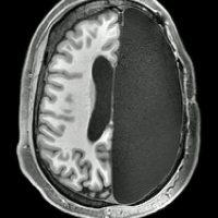 Удивительное исследование: Как некоторые люди живут только с половиной мозга