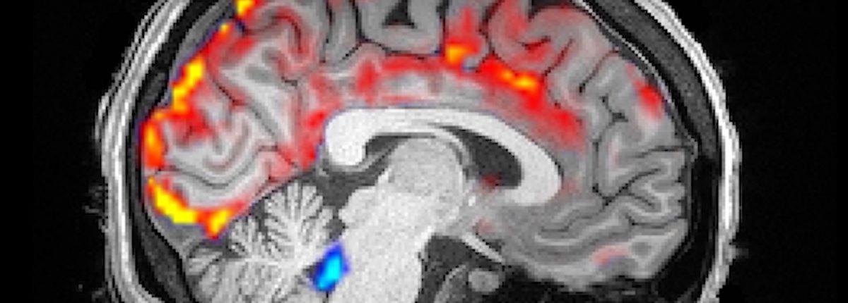 Захватывающее видео показывает как волны спинномозговой жидкости «промывают» наш мозг во время сна