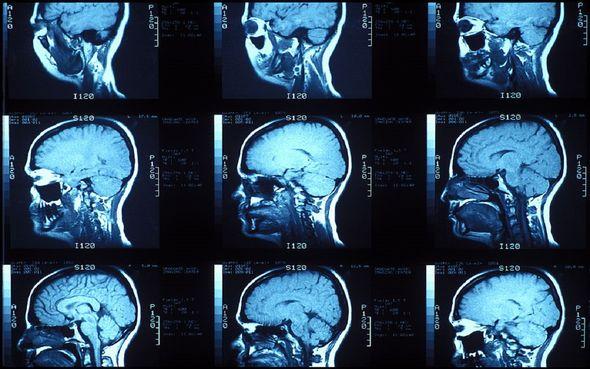 Илон Маск создает импланты для взаимодействия разума с искусственным интеллектом