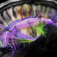 В человеческом мозге обнаружен неизвестный ранее тип сигнала